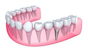 Implante dental castellana