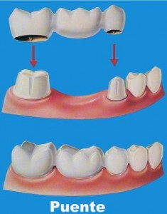 Tipos-de-protesis-dental[1]