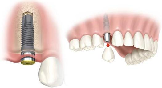 hueso-deficiente-para-implantes