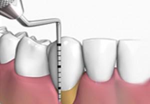 periodoncia1_dentista_castellana