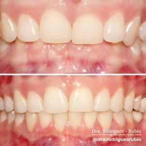 18-ultimo-caso-joven acomplejada-al sonreír no se le veia la parte inferior de su boca-resuelto con brackets en 20 meses