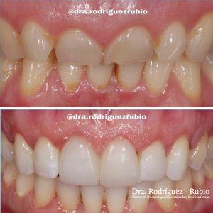 alargamiento-coronario-blanqueamiento-carillas-dentista-madrid