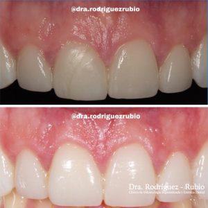 blanqueamiento-carillas-resultado-natural-dentista-madrid