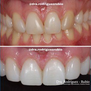 blanqueamiento-y-carillas-composite-dentista-madrid