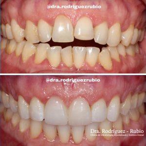 ortodoncia-invisaling-blanqueamiento-carillas-20meses-dentista-madrid